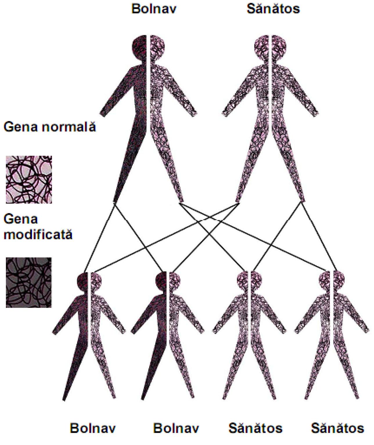 miopie autosomală dominantă suplimente alimentare pentru restabilirea vederii